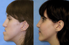 Orthognathic Surgery Before and After Photos