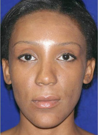 Ethnic Rhinoplasty after 312665