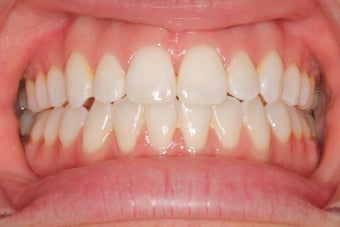 27 Year Old Female Clear Braces after 1305072