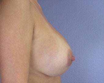 Breast Implant Correction after 281303