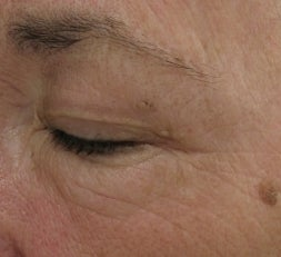 Crows feet and eye wrinkles treated with 1 treatment of Lux 1540 Fractional Laser after 52903