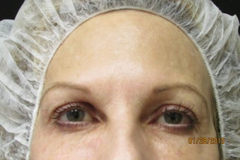 Ultherapy Eye Lift after 887267
