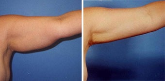 Arm Liposuction before 277392