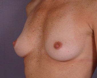 Breast Implant Correction before 281300