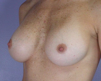 Breast Implant Correction after 281300