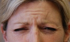 Botox to Forehead and Frown Wrinkles before 667210