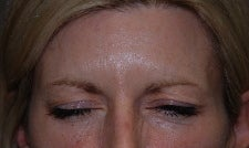 Botox to Forehead and Frown Wrinkles after 667210