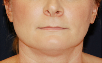Chin Liposuction - Lower Facial Rejuvenation 674078