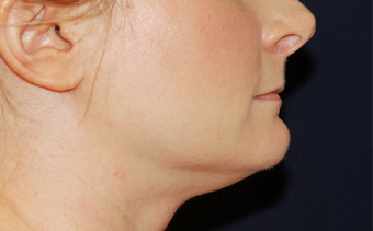 Chin Liposuction - Lower Facial Rejuvenation before 674078