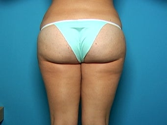 Liposuction of Hips and Outer Thighs after 136878