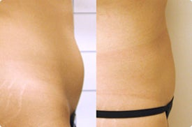 Smart Lipo: Abdomen  before 989032