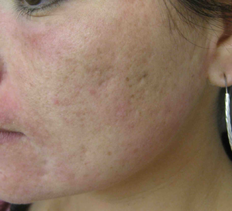 Acne scarring treated with filler before 821646