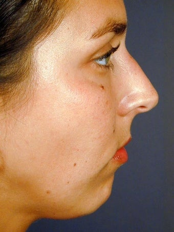 Female Chin Implant before 831449