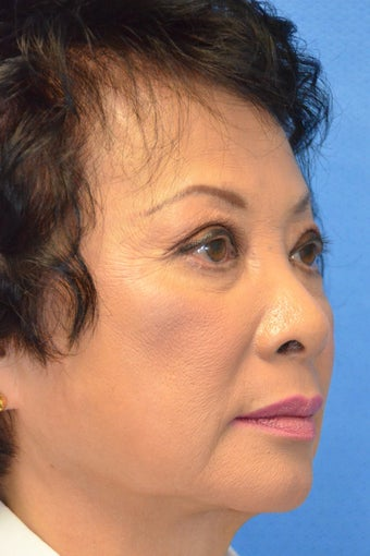 Asian Female Treated with Buccal Fat Removal 994338