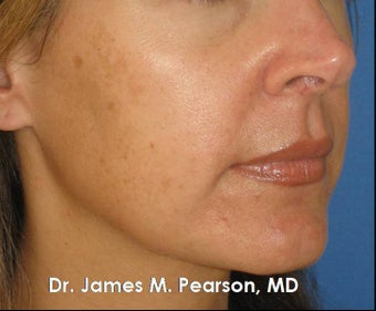 Melasma Treatment before 910410