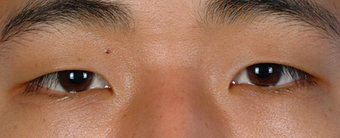 Asian Blepharoplasty before 857912