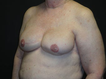 Breast reconstruction - Implants 912574