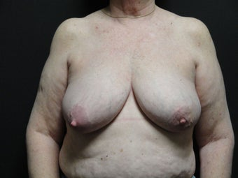 Breast reconstruction - Implants before 912574