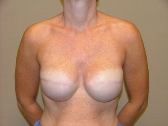 Breast Reconstruction after 735389
