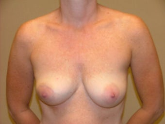 Breast Reconstruction before 735389