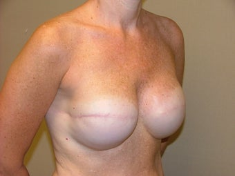 Breast Reconstruction 735389