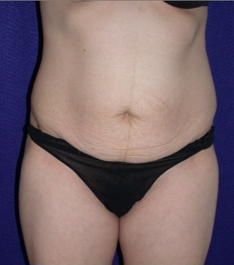Tummy Tuck before 204408