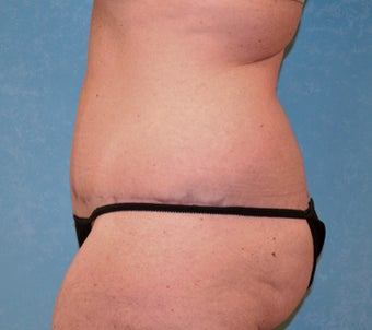 Circumferential Body Lift after 856577