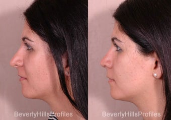 Revision Rhinoplasty before 681876