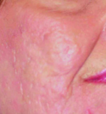 Fraxel Laser Acne Scars after 901955