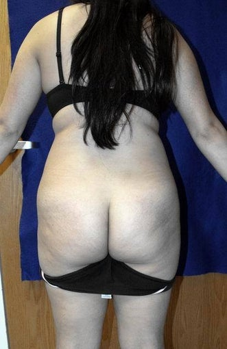 Buttock (Gluteal) Augmentation via liposuction and fat transfer before 657464