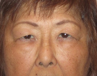 64 year old female who desired double lid surgery before 811454
