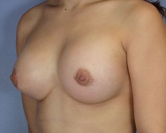 Breast Asymmetry Correction after 281320