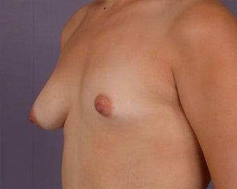 Breast Asymmetry Correction before 281320