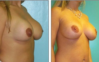 Breast Reconstruction before 1115970
