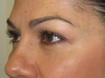 42 year old female with eyelid bags