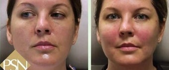 Vampire Facelift before 1238492