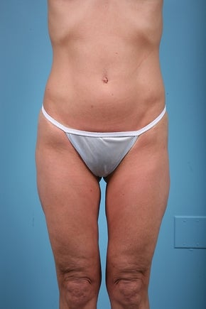 Thigh Lift Patient before 779062
