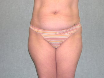 SmartLipo before 607515