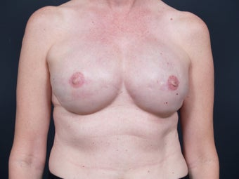 51 Year Old Feamale for Breast Reconstruction after 643230