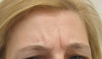 40 year-old female treated with Botox for frown lines before 989329