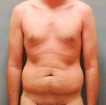 Abdominoplasty before 325735