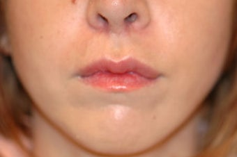 Before and After Lip Lift after 65356