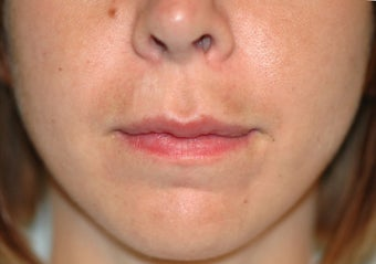 Before and After Lip Lift before 65356