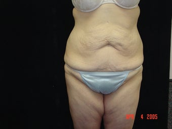 Body Lift with Liposuction of Abdomen, Waist, Flanks before 203454