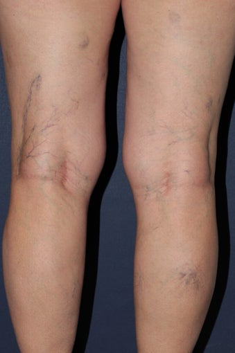 62 year old female treated with Sclerotherapy for Leg Veins before 986681