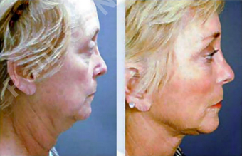 Complete Facial Rejuvenation after 138171