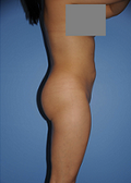 Buttocks Enhancement 296683