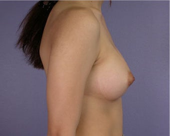 Breast Augmentation after 281397