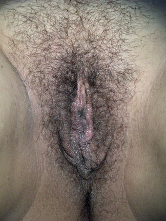 Labiaplasty after 281453