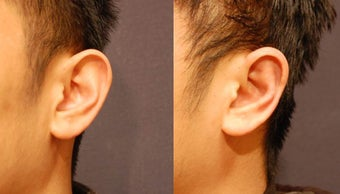 Male otoplasty before 894597